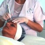 Micro Needling Behandlung