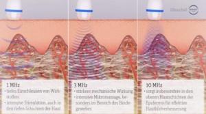 Ultraschall-Hautbild